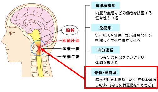脊髄・筋肉系の圧迫